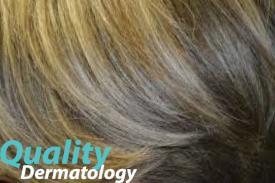 excessive hair growth